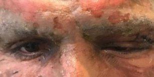 Impactante: así le quedó la cara a Lucas Viatri tras accidentarse con pirotecnia