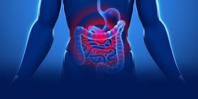 Cáncer de colon: diagnostican más de un caso por hora en Argentina
