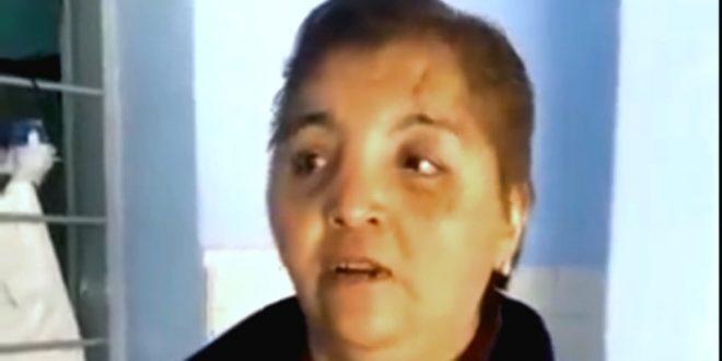 "Ataque femicida: ""Me pegó un mazazo por cada año de convivencia"""