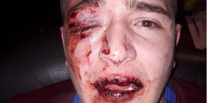 Así quedó el joven atacado por policías y patovicas en un concurrido boliche