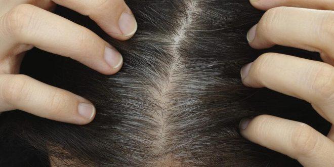 Nuevo método eficaz para frenar la caída del pelo y la aparición de canas