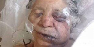 El terrible final de Dolores, la abuela de 83 años que fue golpeada por ladrones y murió