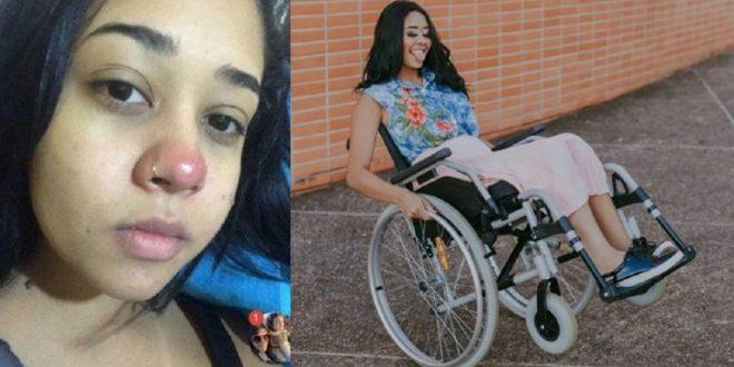 Se hizo un piercing en la nariz y quedó parapléjica
