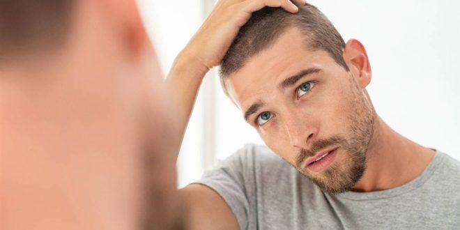 ¿Cuáles son los riesgos de un implante capilar?